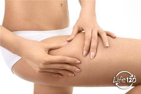 Le cause della cellulite e come guarire naturalmente